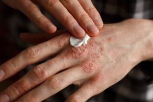 Salbe gegen Waschmittel-Allergie
